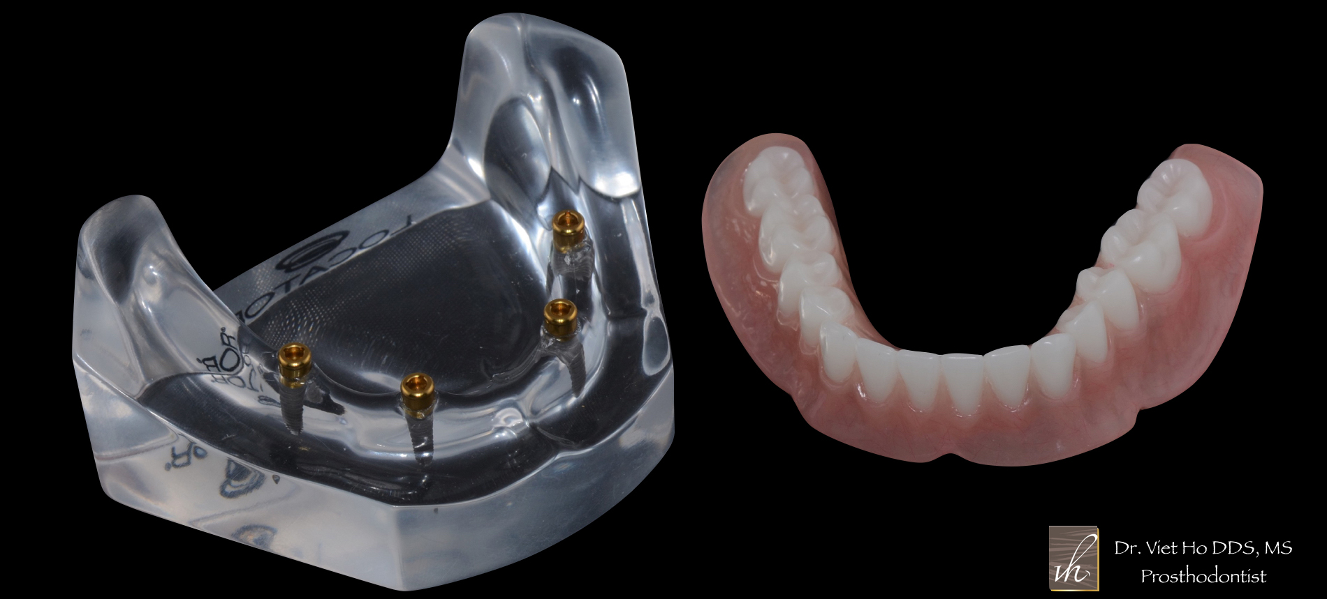 winter haven Implant Dentures